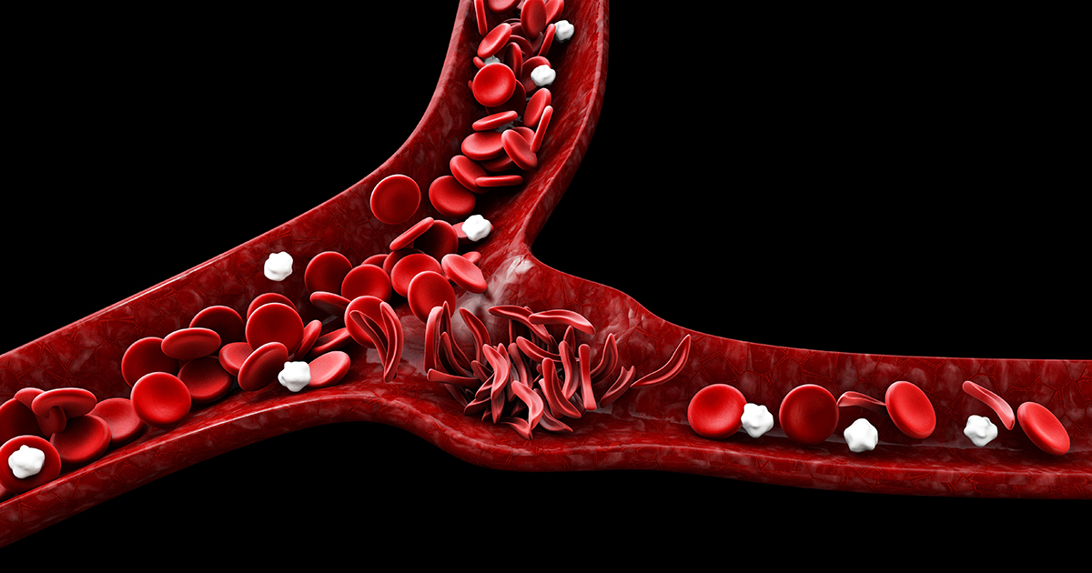 Cell Therapy: Sickle Cell Disease